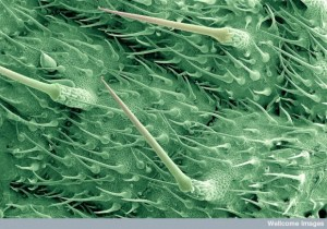 B0006134 Stinging hairs on a nettle leaf
